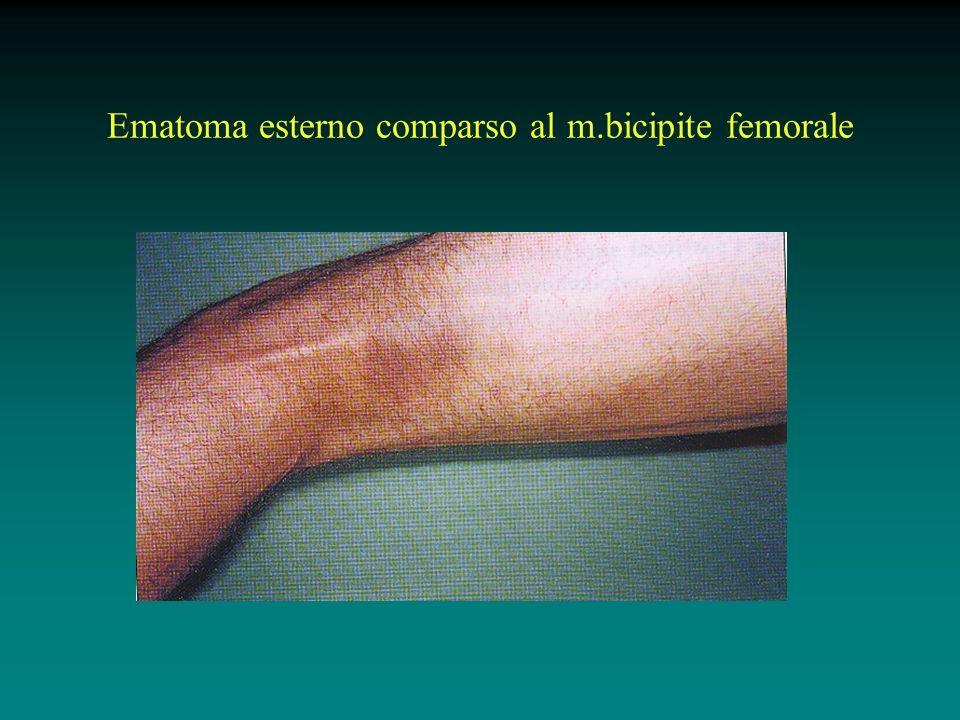 Ematoma esterno comparso al m.bicipite femorale