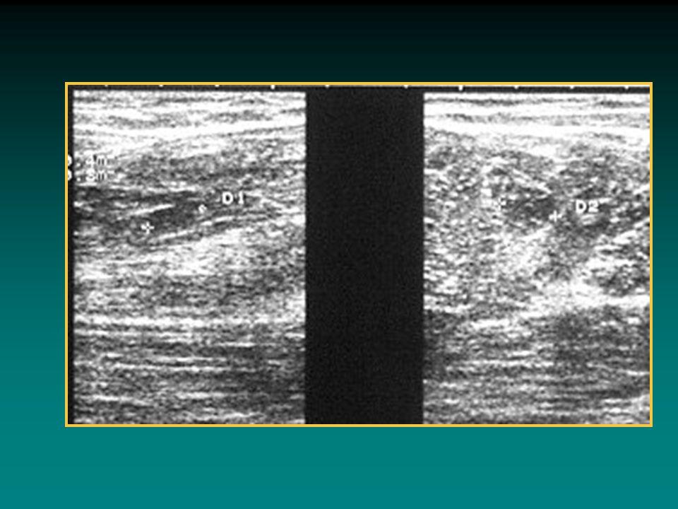 DISTRAZIONI Frequenti negli sport che richiedono una forza muscolare esplosiva; Classificate in: lesioni di I grado lesioni di II grado lesioni di III grado