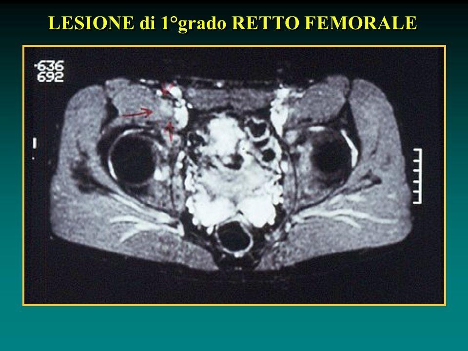 LESIONE di 1°grado RETTO FEMORALE