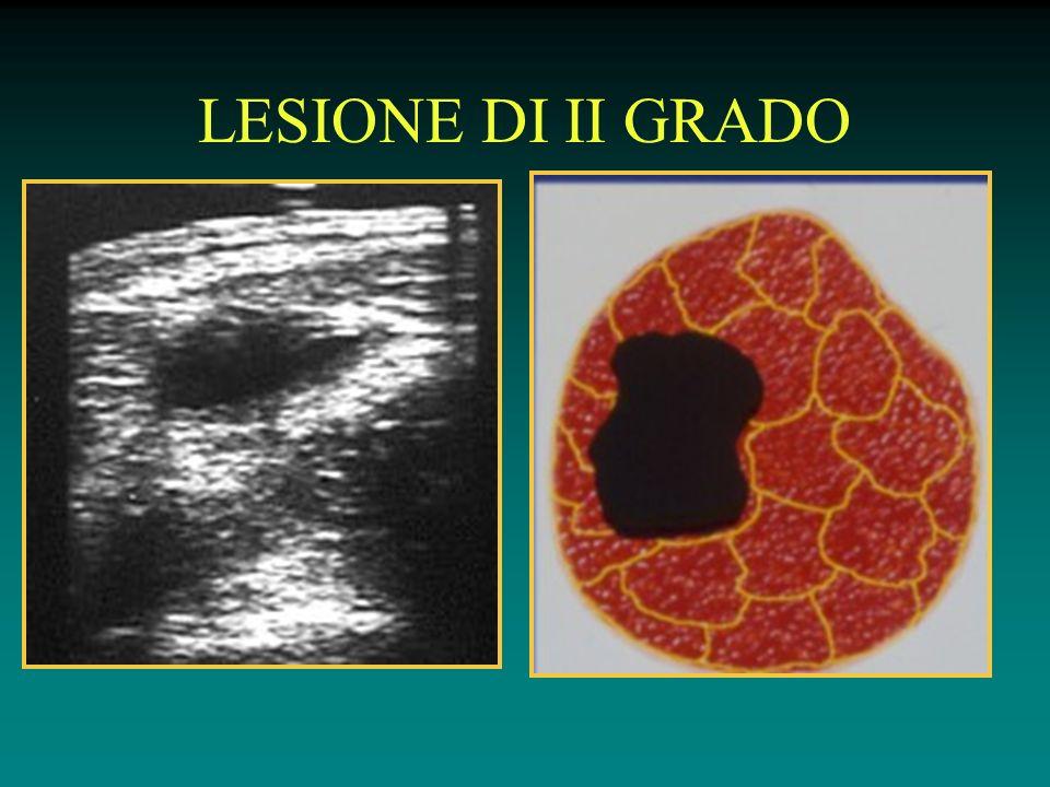 LESIONE DI II GRADO