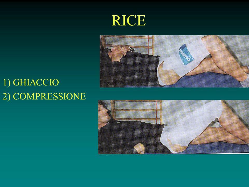 RICE 1) GHIACCIO 2) COMPRESSIONE
