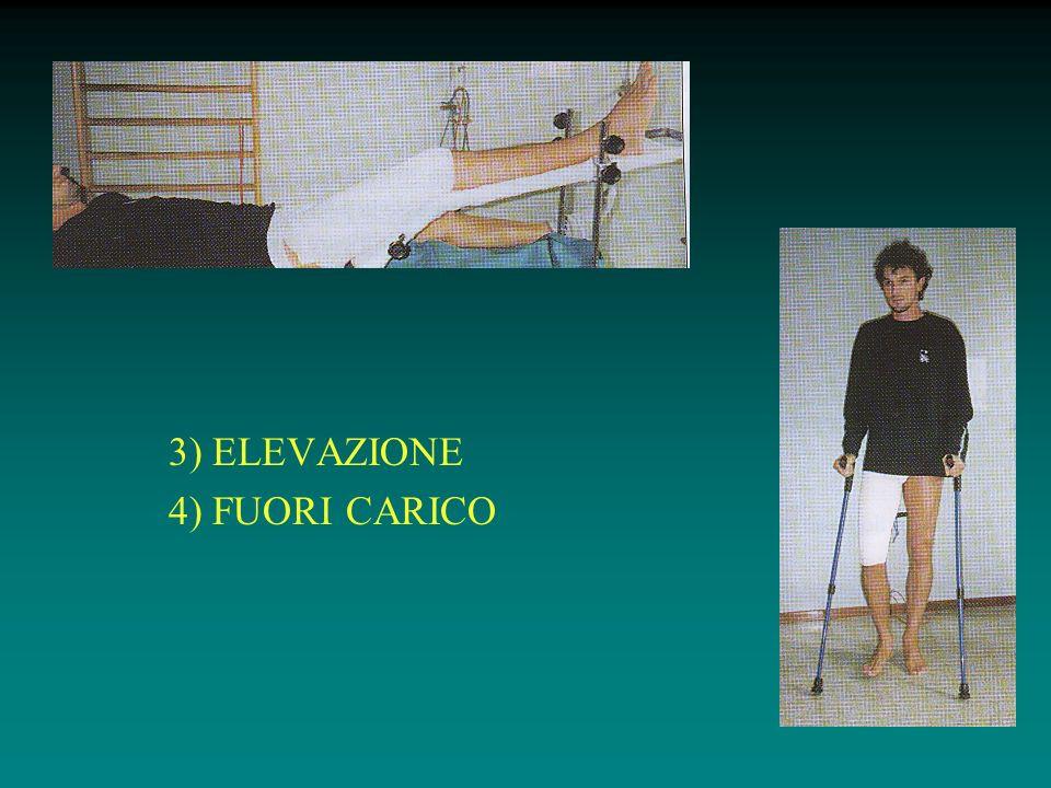 3) ELEVAZIONE 4) FUORI CARICO