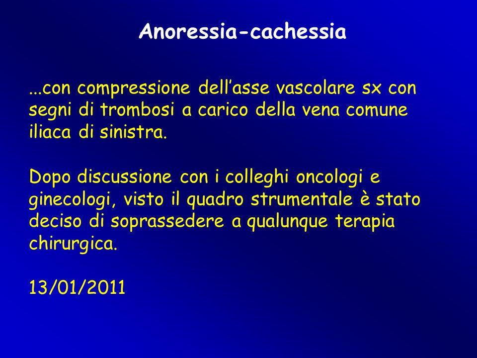 Anoressia-cachessia...con compressione dell'asse vascolare sx con segni di trombosi a carico della vena comune iliaca di sinistra.