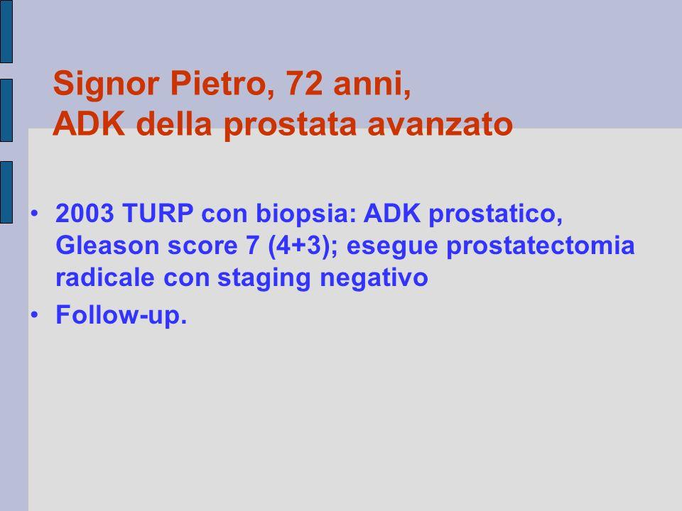 Signor Pietro, 72 anni, ADK della prostata avanzato 2003 TURP con biopsia: ADK prostatico, Gleason score 7 (4+3); esegue prostatectomia radicale con s
