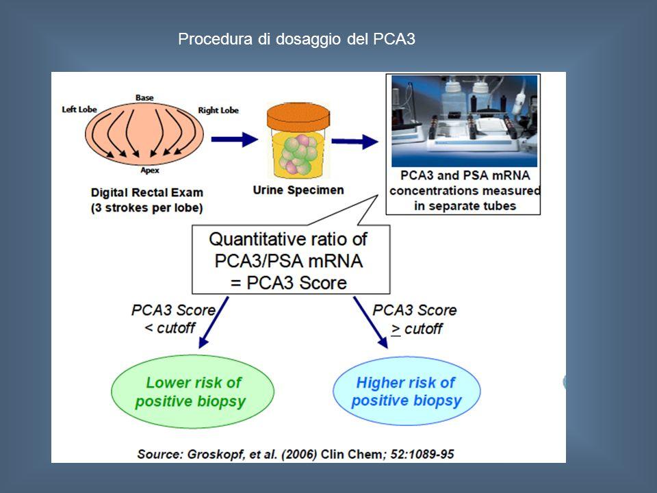 Procedura di dosaggio del PCA3