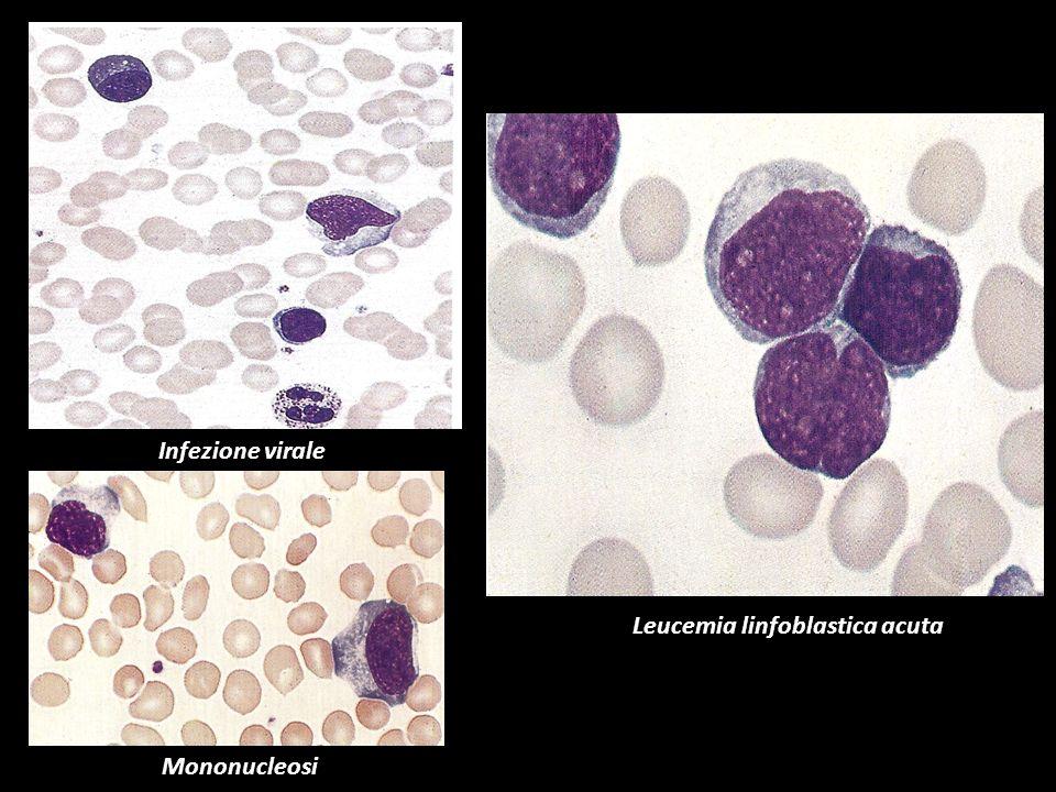 Infezione virale Leucemia linfoblastica acuta Mononucleosi