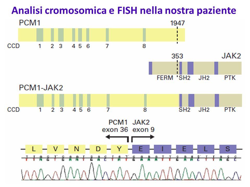 Analisi cromosomica e FISH nella nostra paziente Cariotipo:46,XY,t(8;9)(p22;p24) Ricerca di sonde che mappano a livello dei punti di rottura dei due cromosomi; vengono scelte sonde che coprono i geni PCM1 (RP11-880I6 e RP11-428L21) e JAK2 (RP11-3H3 e RP11-428-L21), quelli ritenuti più probabilmente coinvolti nella traslocazione FISH con sonde per JAK2 FISH con sonda per PCM1 Conclusioni: t(8;9)(p22;p24) con fusione PCM1-JAK2