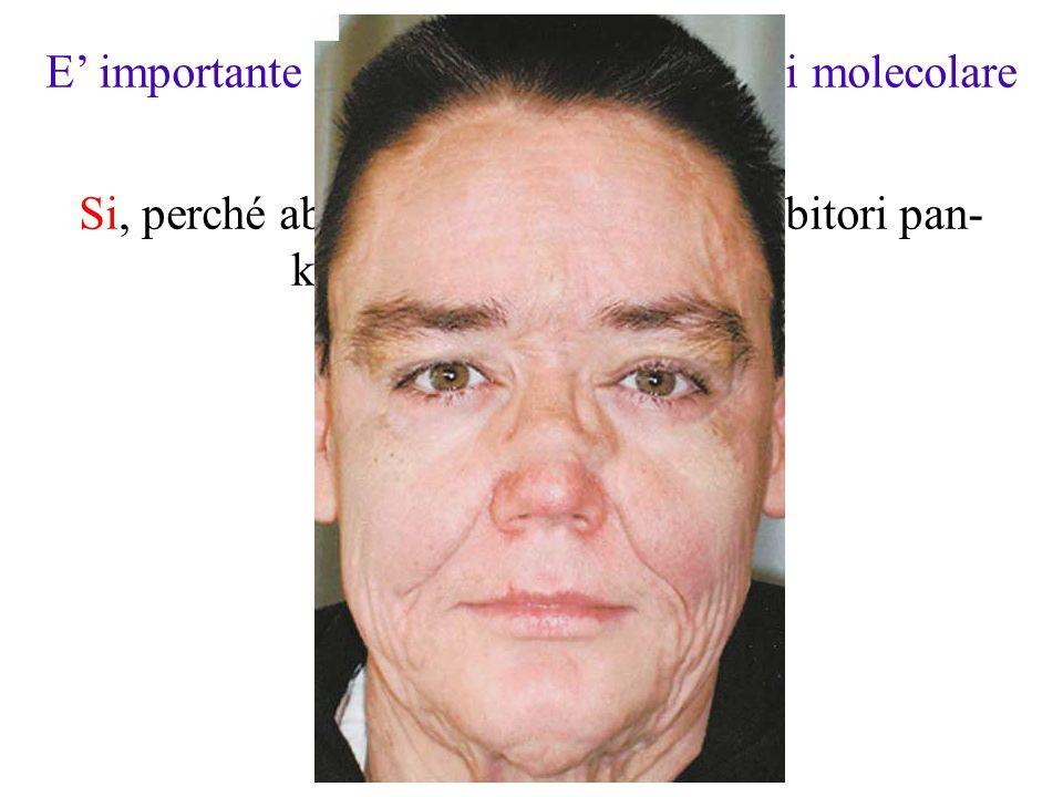 E' importante determinare la patogenesi molecolare della LEC.
