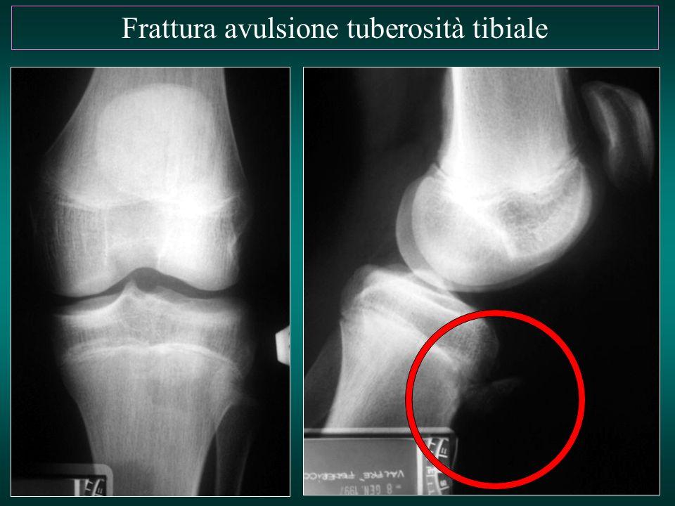 Frattura avulsione tuberosità tibiale