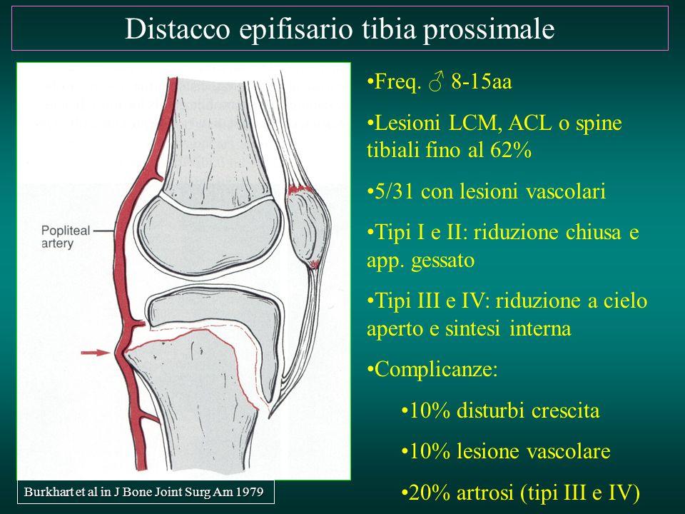 Distacco epifisario tibia prossimale Freq. ♂ 8-15aa Lesioni LCM, ACL o spine tibiali fino al 62% 5/31 con lesioni vascolari Tipi I e II: riduzione chi