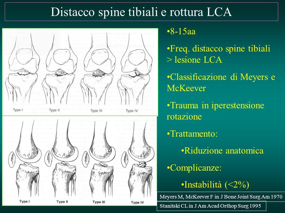 Distacco spine tibiali e rottura LCA 8-15aa Freq. distacco spine tibiali > lesione LCA Classificazione di Meyers e McKeever Trauma in iperestensione r