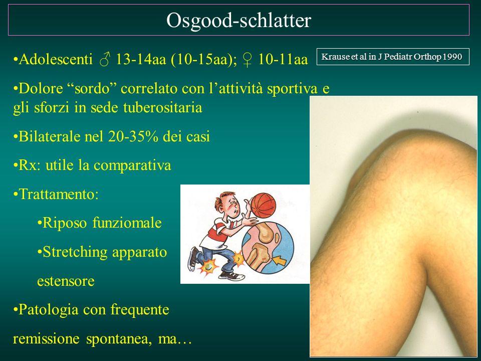 """Osgood-schlatter Adolescenti ♂ 13-14aa (10-15aa); ♀ 10-11aa Dolore """"sordo"""" correlato con l'attività sportiva e gli sforzi in sede tuberositaria Bilate"""