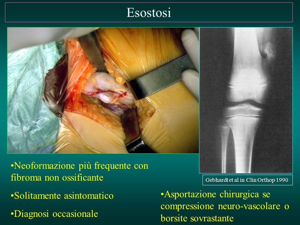 Esostosi Neoformazione più frequente con fibroma non ossificante Solitamente asintomatico Diagnosi occasionale Asportazione chirurgica se compressione