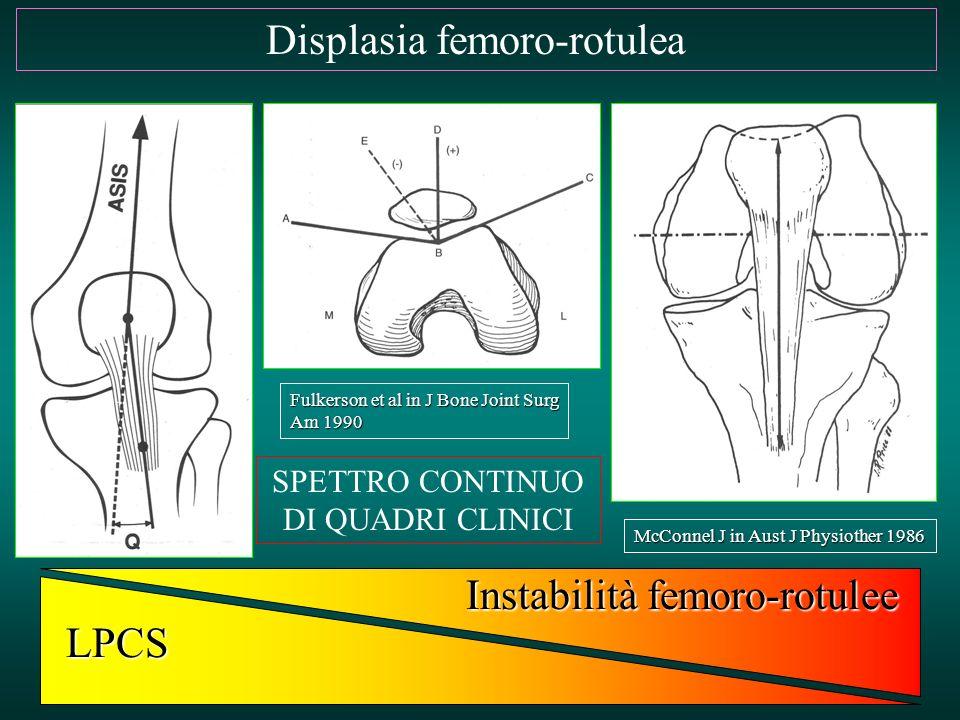 Displasia femoro-rotulea SPETTRO CONTINUO DI QUADRI CLINICI LPCS Instabilità femoro-rotulee Fulkerson et al in J Bone Joint Surg Am 1990 McConnel J in