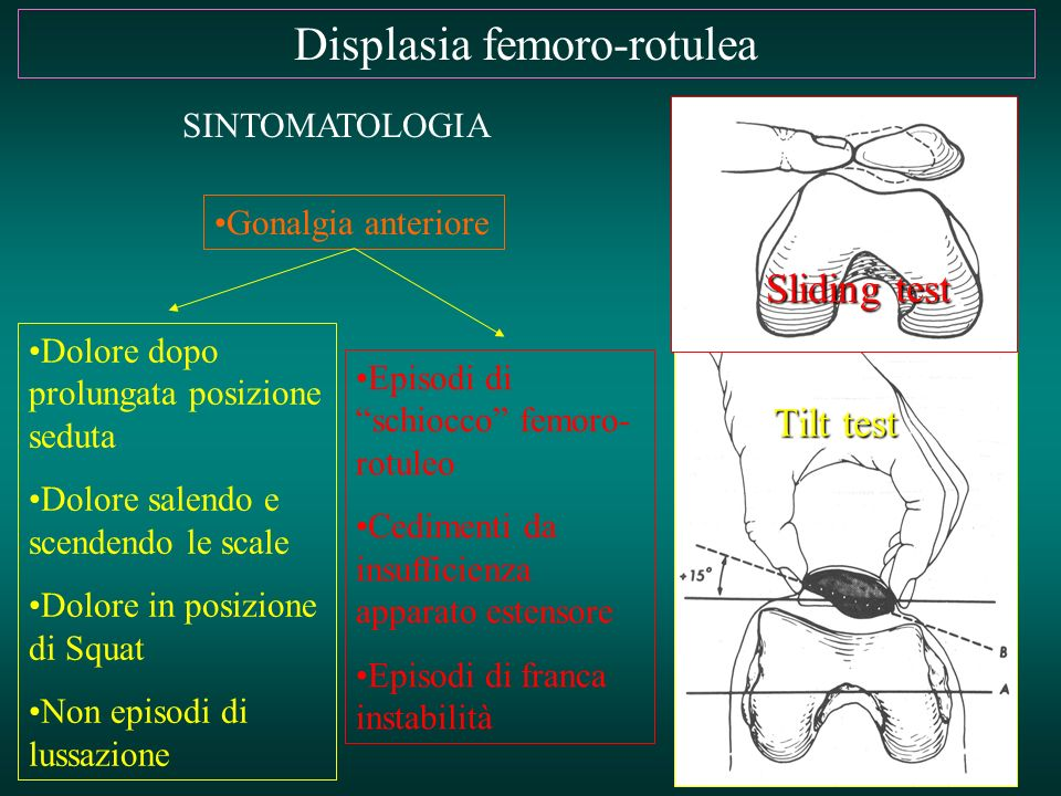 Displasia femoro-rotulea SINTOMATOLOGIA Gonalgia anteriore Tilt test Sliding test Dolore dopo prolungata posizione seduta Dolore salendo e scendendo l