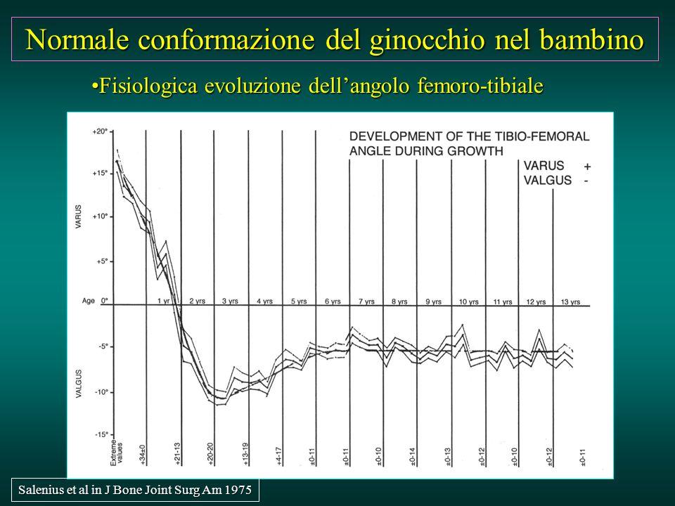 Fisiologica evoluzione dell'angolo femoro-tibialeFisiologica evoluzione dell'angolo femoro-tibiale Normale conformazione del ginocchio nel bambino Sal