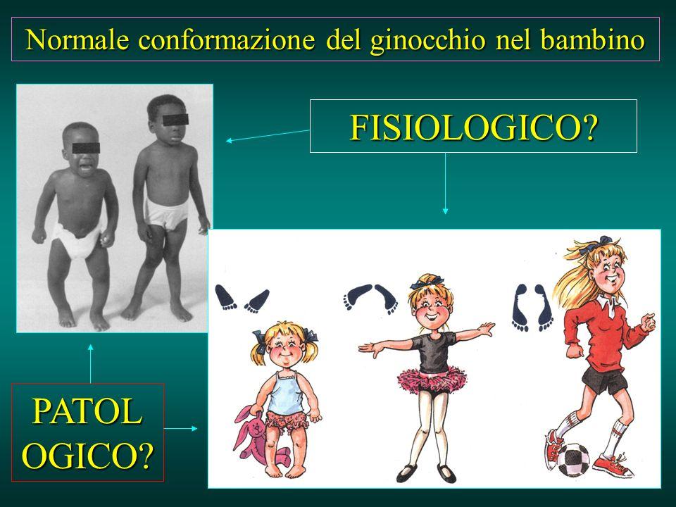 Normale conformazione del ginocchio nel bambino FISIOLOGICO? PATOL OGICO?