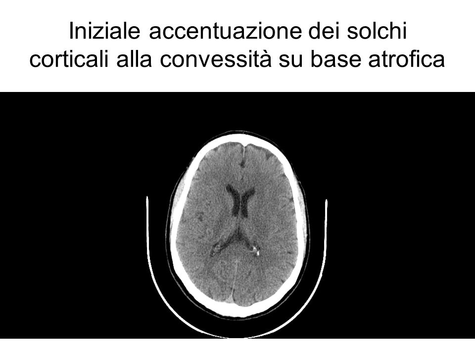 Iniziale accentuazione dei solchi corticali alla convessità su base atrofica