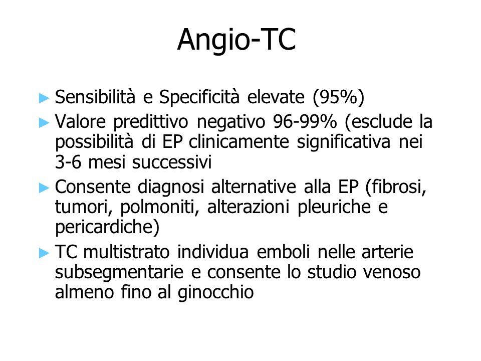 Angio-TC ► ► Sensibilità e Specificità elevate (95%) ► ► Valore predittivo negativo 96-99% (esclude la possibilità di EP clinicamente significativa ne