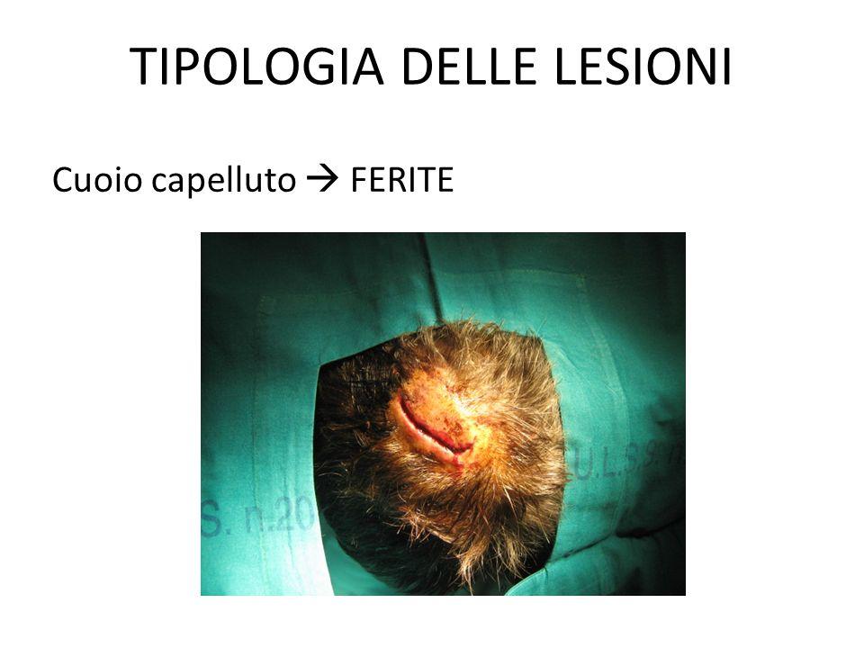 TIPOLOGIA DELLE LESIONI Cranio  FRATTURE