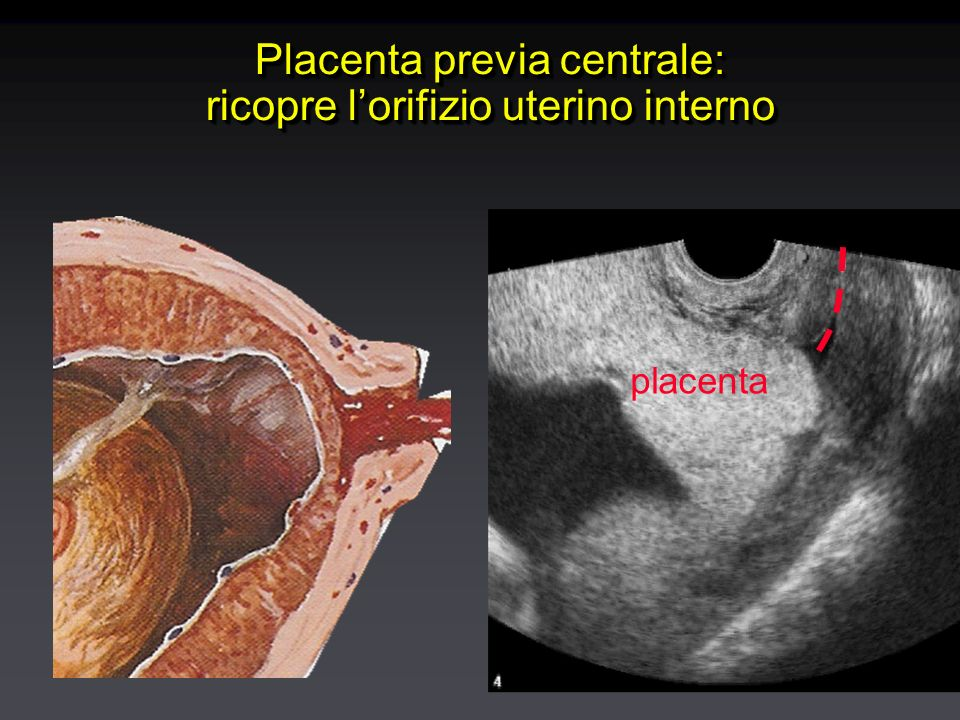 Placenta previa centrale: ricopre l'orifizio uterino interno placenta