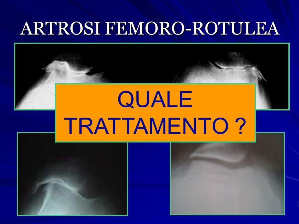 ARTROSI FEMORO-ROTULEA QUALE TRATTAMENTO ?