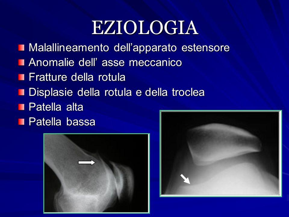 Il malallinemento e' strettamente correlato all' insorgenza dell'artrosi femoro- rotulea ( Cartier) ANGOLO Q AUMENTATO VMO INSUFFICIENTE RIGIDITA' E ACCORCIAMENTO DELLE STRUTTURE LATERALI PATELLA ALTA (McConnell)