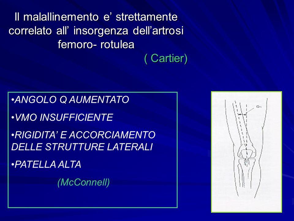 Il malallinemento e' strettamente correlato all' insorgenza dell'artrosi femoro- rotulea ( Cartier) ANGOLO Q AUMENTATO VMO INSUFFICIENTE RIGIDITA' E A