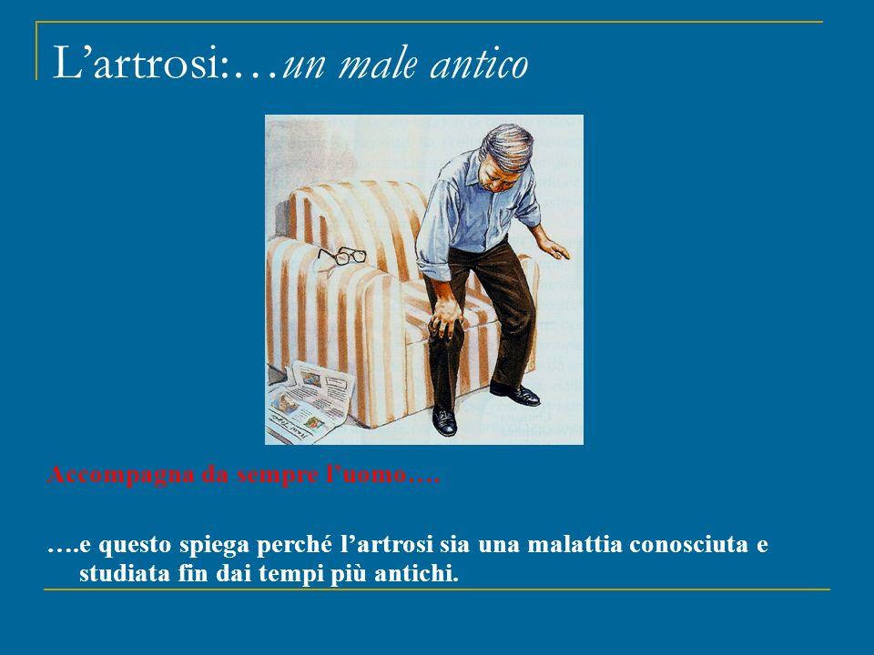 L'artrosi:…un male antico Accompagna da sempre l'uomo…. ….e questo spiega perché l'artrosi sia una malattia conosciuta e studiata fin dai tempi più an
