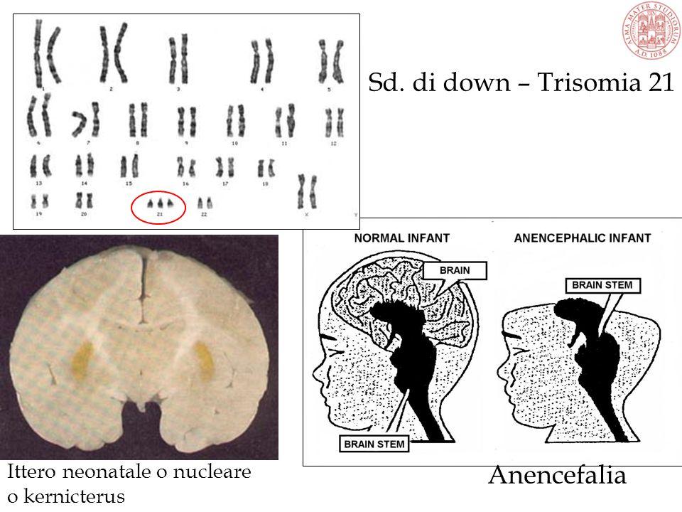 Ittero neonatale o nucleare o kernicterus Anencefalia Sd. di down – Trisomia 21