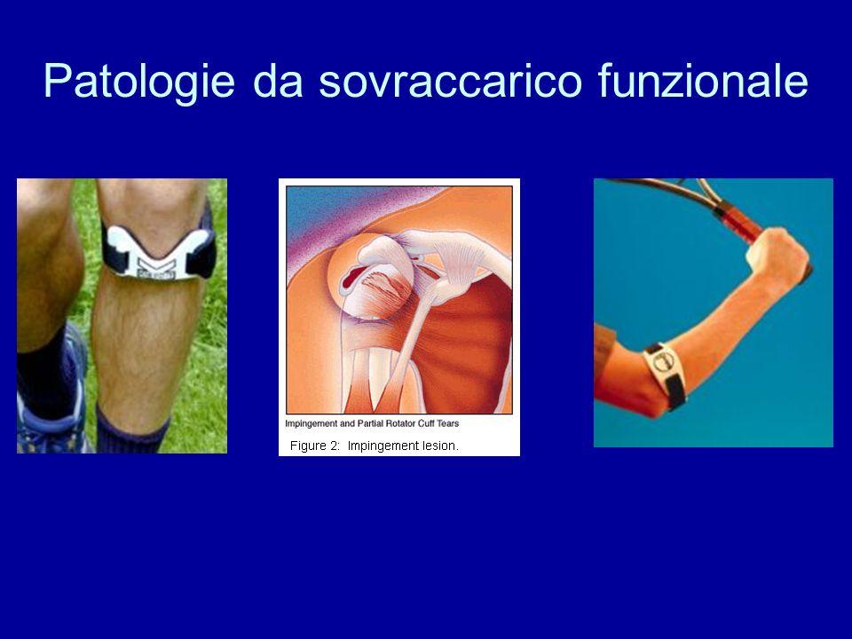 Patologie da sovraccarico funzionale