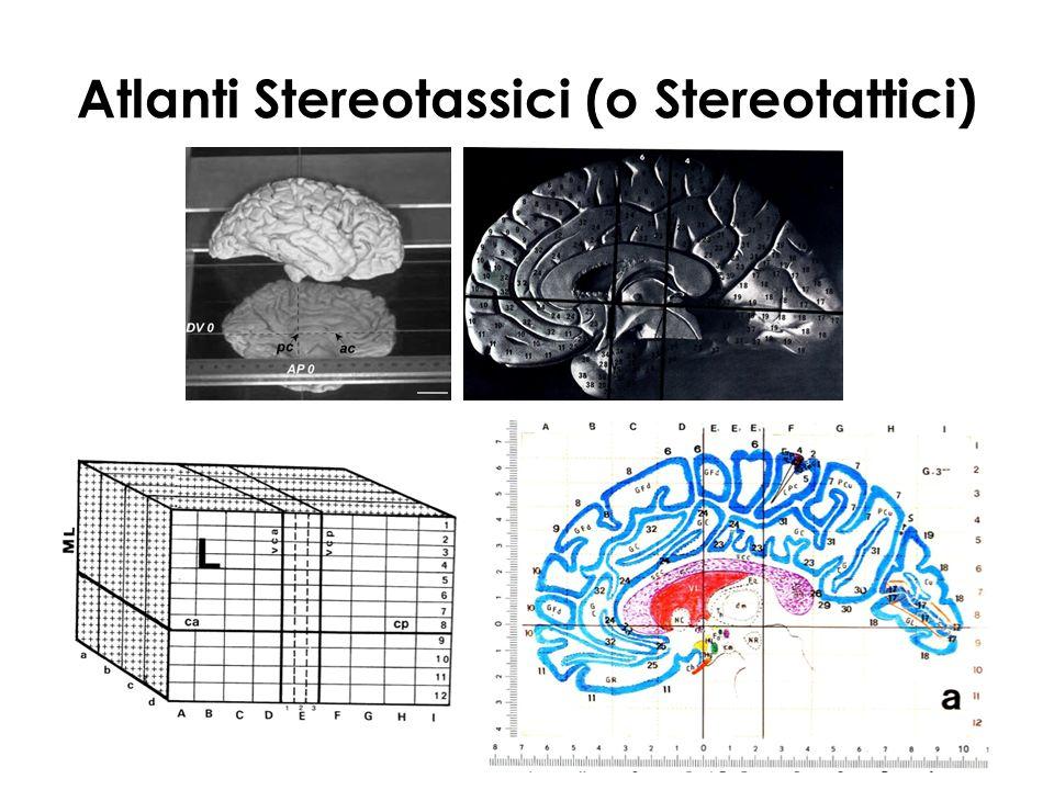 Atlanti Stereotassici (o Stereotattici)