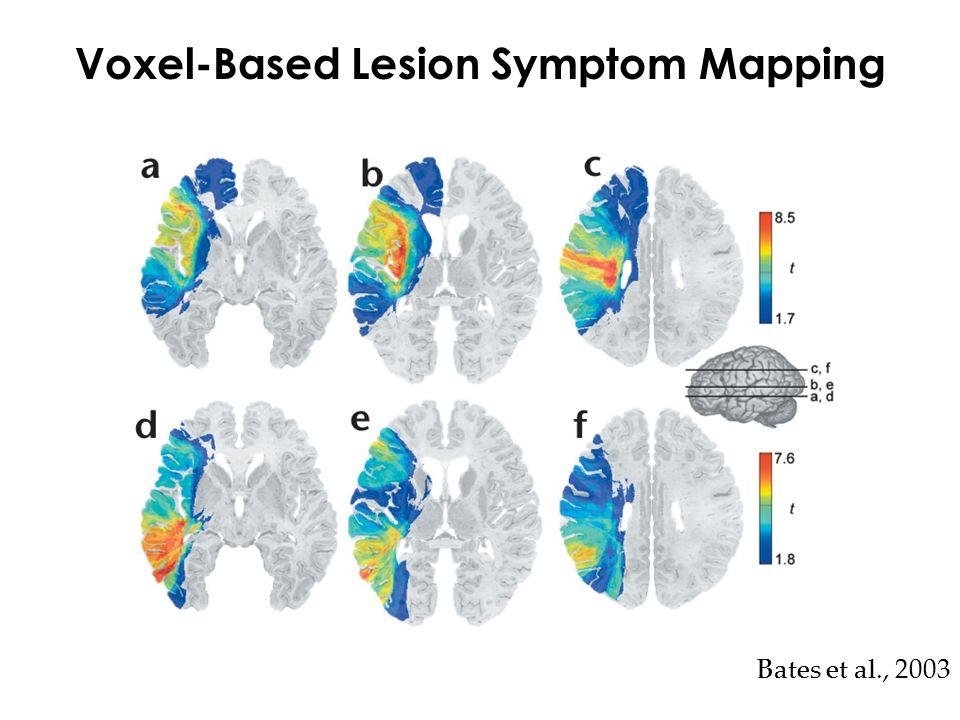 Voxel-Based Lesion Symptom Mapping Bates et al., 2003