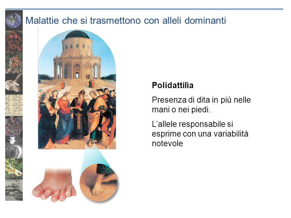 Malattie che si trasmettono con alleli dominanti Polidattilìa Presenza di dita in più nelle mani o nei piedi. Lallele responsabile si esprime con una