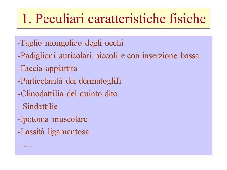 1. Peculiari caratteristiche fisiche - Taglio mongolico degli occhi -Padiglioni auricolari piccoli e con inserzione bassa -Faccia appiattita -Particol