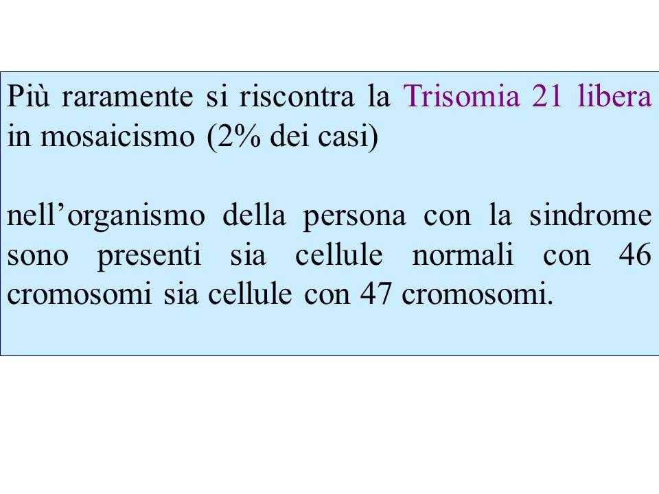 Infine, il terzo tipo di anomalia, anchessa rara, è la Trisomia 21 da traslocazione (3% dei casi): il cromosoma 21 in più (o meglio una parte di esso, almeno il segmento terminale) è il numero 14, 21, o 22.