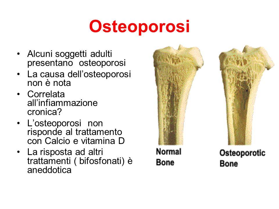 Osteoporosi Alcuni soggetti adulti presentano osteoporosi La causa dellosteoporosi non è nota Correlata allinfiammazione cronica? Losteoporosi non ris