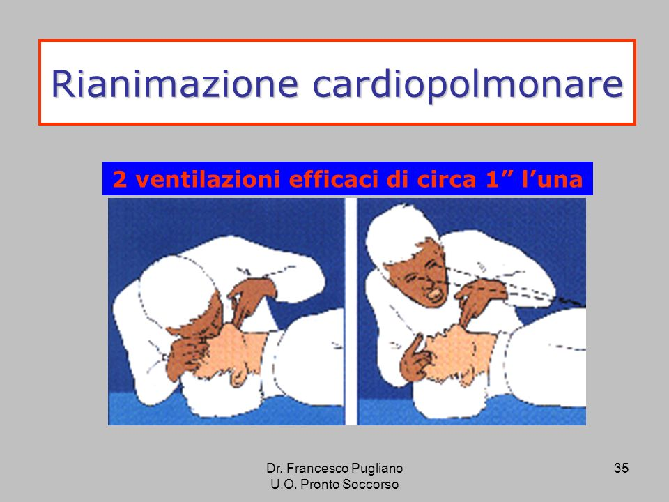 35 Rianimazione cardiopolmonare 2 ventilazioni efficaci di circa 1 luna Dr. Francesco Pugliano U.O. Pronto Soccorso