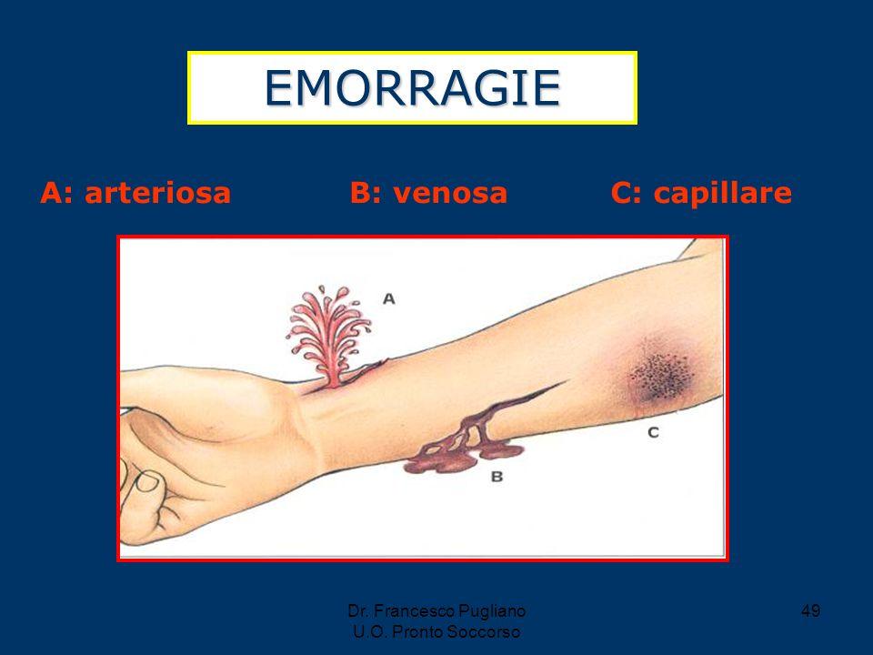 49 EMORRAGIE A: arteriosaB: venosaC: capillare Dr. Francesco Pugliano U.O. Pronto Soccorso
