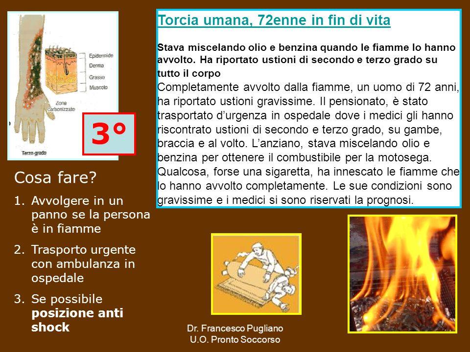 69 3° Torcia umana, 72enne in fin di vita Stava miscelando olio e benzina quando le fiamme lo hanno avvolto. Ha riportato ustioni di secondo e terzo g