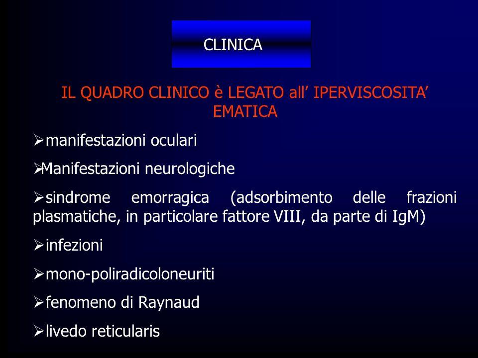 CLINICA IL QUADRO CLINICO è LEGATO all IPERVISCOSITA EMATICA manifestazioni oculari Manifestazioni neurologiche sindrome emorragica (adsorbimento dell