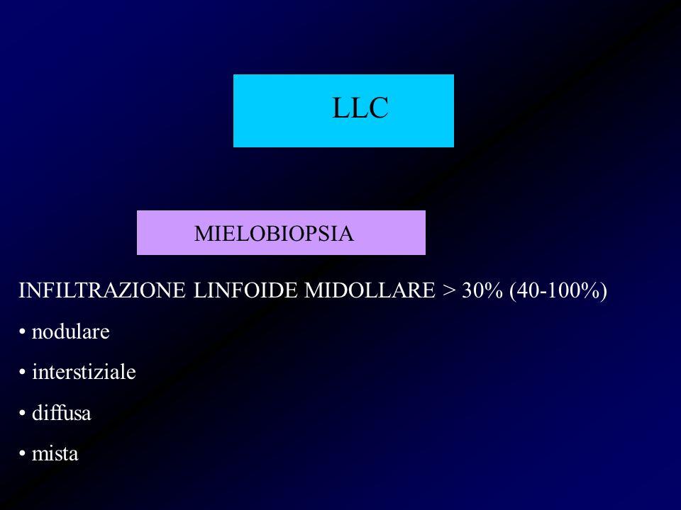 LLC MIELOBIOPSIA INFILTRAZIONE LINFOIDE MIDOLLARE > 30% (40-100%) nodulare interstiziale diffusa mista