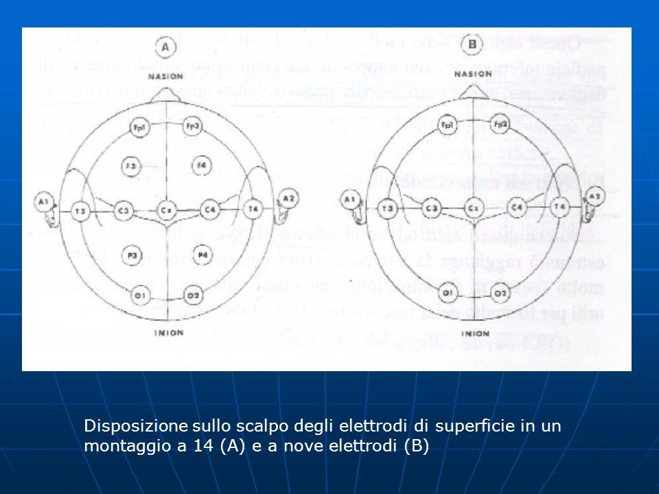 Disposizione sullo scalpo degli elettrodi di superficie in un montaggio a 14 (A) e a nove elettrodi (B)
