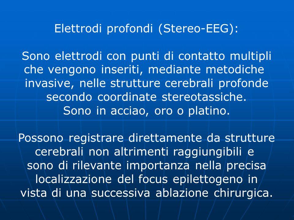 Elettrodi profondi (Stereo-EEG): Sono elettrodi con punti di contatto multipli che vengono inseriti, mediante metodiche invasive, nelle strutture cere