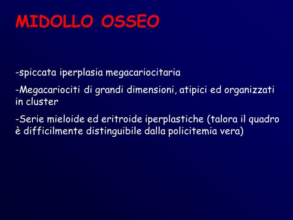 MIDOLLO OSSEO -spiccata iperplasia megacariocitaria -Megacariociti di grandi dimensioni, atipici ed organizzati in cluster -Serie mieloide ed eritroide iperplastiche (talora il quadro è difficilmente distinguibile dalla policitemia vera)