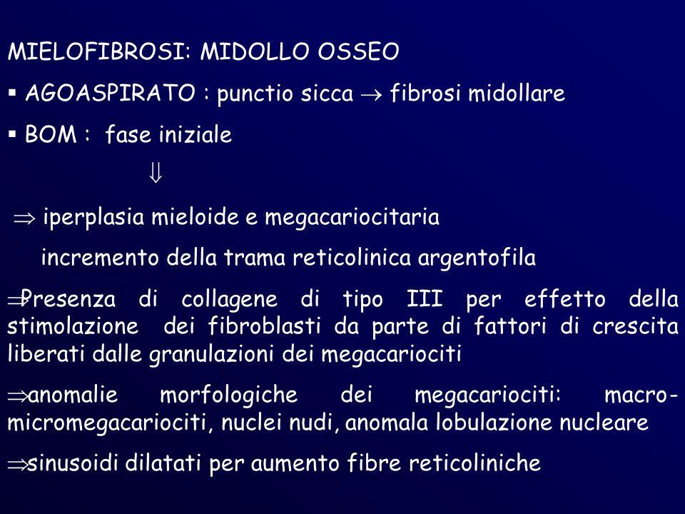 MIELOFIBROSI: MIDOLLO OSSEO AGOASPIRATO : punctio sicca fibrosi midollare BOM : fase iniziale iperplasia mieloide e megacariocitaria incremento della trama reticolinica argentofila Presenza di collagene di tipo III per effetto della stimolazione dei fibroblasti da parte di fattori di crescita liberati dalle granulazioni dei megacariociti anomalie morfologiche dei megacariociti: macro- micromegacariociti, nuclei nudi, anomala lobulazione nucleare sinusoidi dilatati per aumento fibre reticoliniche