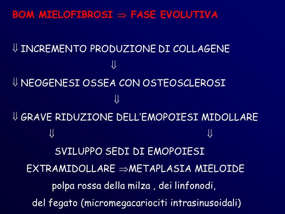 BOM MIELOFIBROSI FASE EVOLUTIVA INCREMENTO PRODUZIONE DI COLLAGENE NEOGENESI OSSEA CON OSTEOSCLEROSI GRAVE RIDUZIONE DELLEMOPOIESI MIDOLLARE SVILUPPO SEDI DI EMOPOIESI EXTRAMIDOLLARE METAPLASIA MIELOIDE polpa rossa della milza, dei linfonodi, del fegato (micromegacariociti intrasinusoidali)
