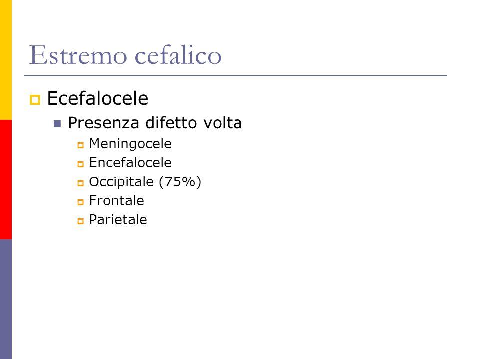 Ecefalocele Presenza difetto volta Meningocele Encefalocele Occipitale (75%) Frontale Parietale