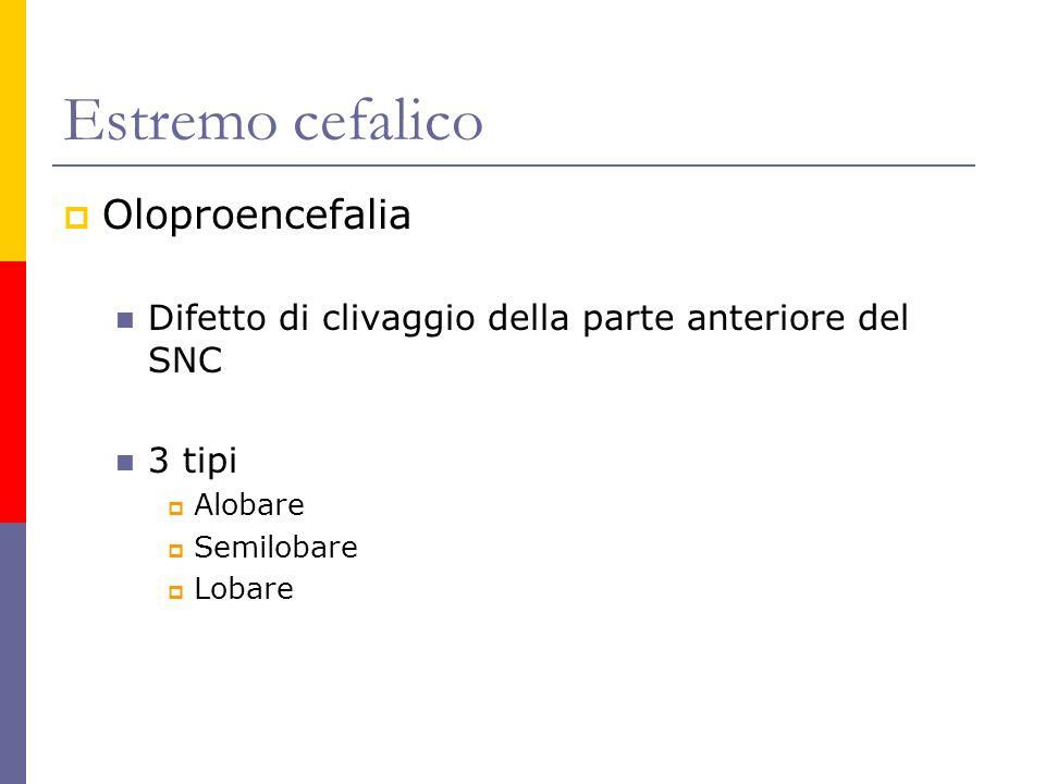 Estremo cefalico Oloproencefalia Difetto di clivaggio della parte anteriore del SNC 3 tipi Alobare Semilobare Lobare