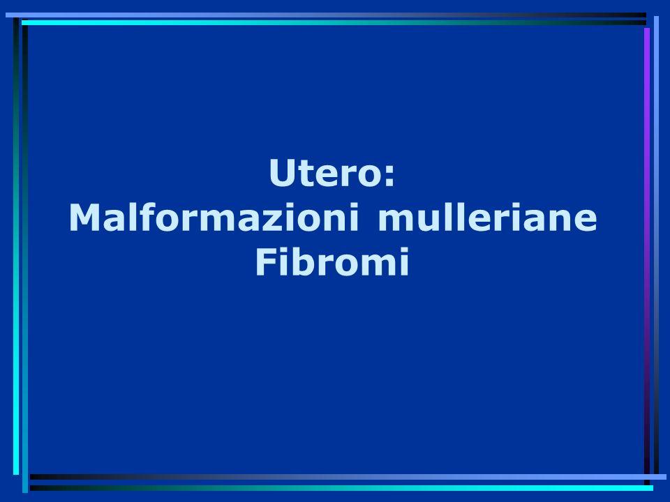 Utero: Malformazioni mulleriane Fibromi
